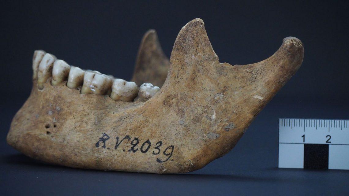 Schädelknochen des Mannes, der vor rund 5000 Jahren in Riņņukalns, Lettland, begraben worden ist. In diesen Knochen hat das Forschungsteam den Pesterreger nachgewiesen. © Dominik Göldner, BGAEU, Berlin